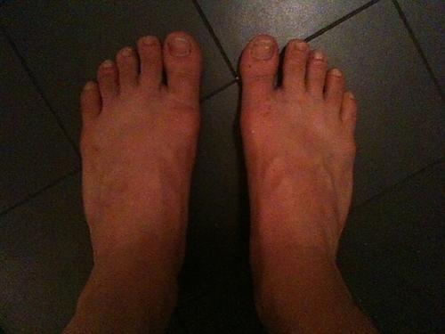 bilder på äckliga fötter